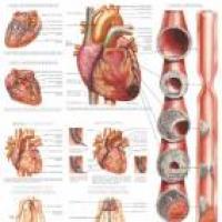 Relación entre hipertensión y corazón