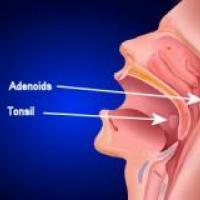 Tratamientos para la apnea obstrucitiva del sueño