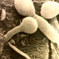 Medicina natural para la candidiasis