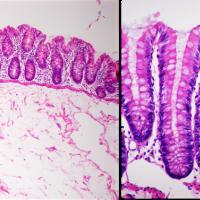 Vellosidades intestinales