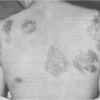 Síntomas de la sífilis